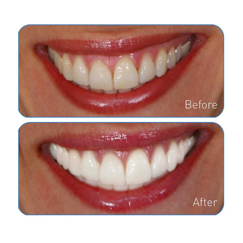 Amazon Com Go Smile Teeth Whitening System 20 Count