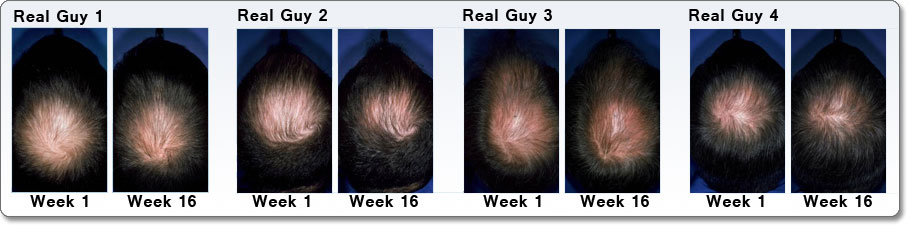 Is Rogaine/minoxidil a scam? | NeoGAF