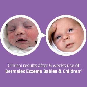 Dermalex Repair Skin Treatment Cream Ebay